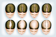 Expert Treatment for Female Hair Loss