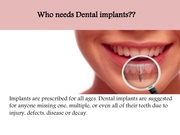 Dental Implants Malvern