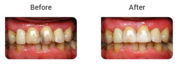 Teeth Bonding and White Fillings Treatment in Melbourne by Healthy Smi