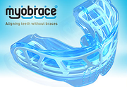 Best Myobrace Treatment Melbourne