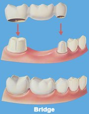 Best Dental Implants Service in Richmond