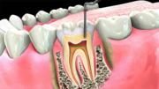 Dentist in Sandhurst