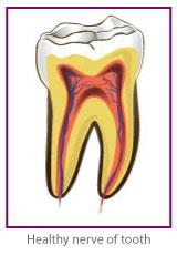 Root Canal Treatment in Blackburn by Healthy Smiles