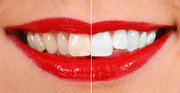 Achieve Stunning Look by Teeth Whitening