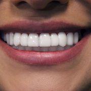 Dentists Oakleigh