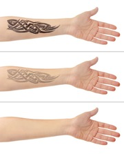 City Of Ink - Laser Tattoo Removal Melbourne