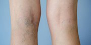 Long-Term Relief Spider Vein Treatment in Melbourne