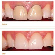 Affordable Dental Implant Clinic in Melbourne
